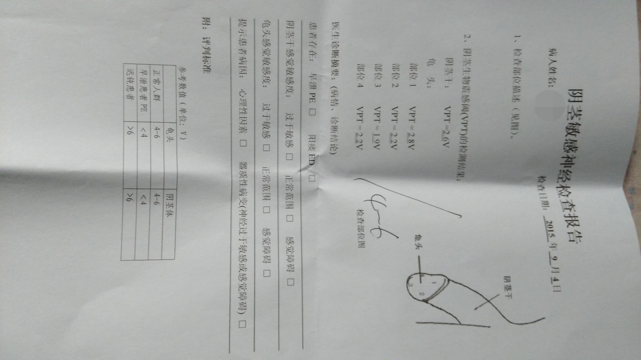 济南武警总队医院阴茎敏感度检查报告-男性健康网
